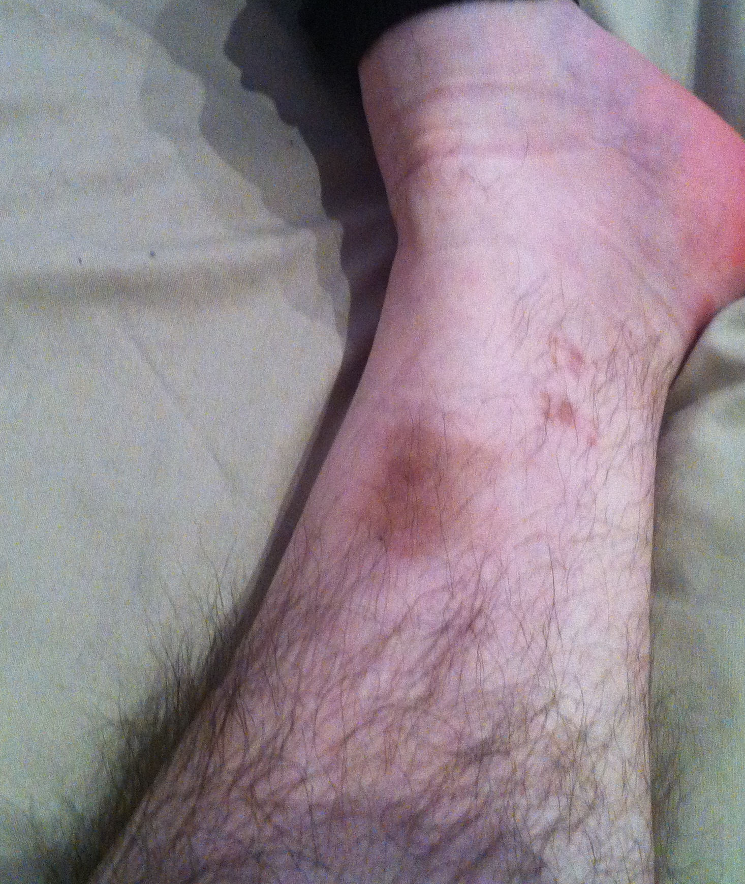 After A Tibial Fracture Img